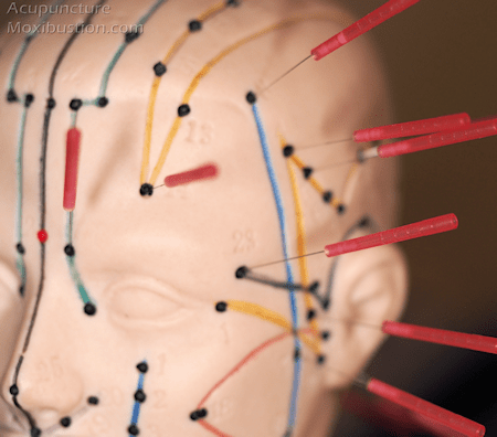 Acupuncture Points used for migraine, TMJ pain etc. - Needles inserted side of head