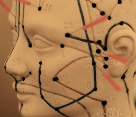 Migraine Research Acupuncture Points
