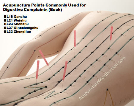 Acupuncture Points for IBS and Digestive Conditions - Needles inserted Back Points acupuncture model