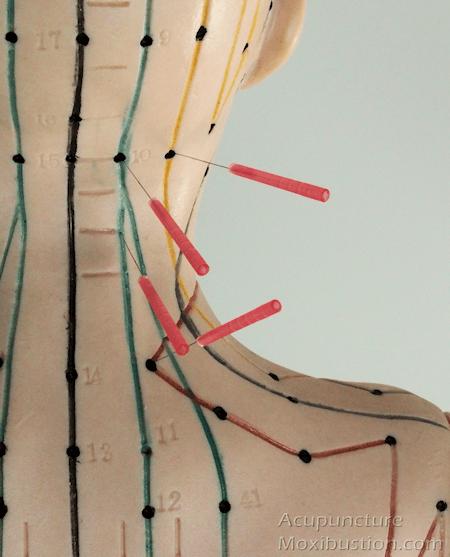 Acupuncture Neck 2 s