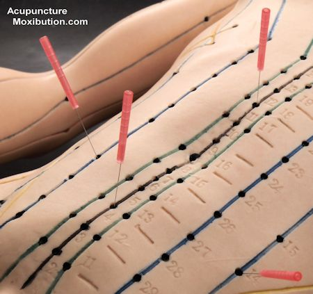 Acupuncture needles inserted in Acupuncture Model
