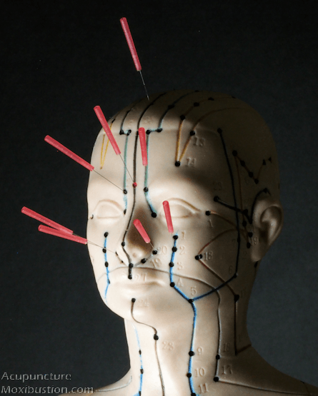 Acupuncture points for sinusitis