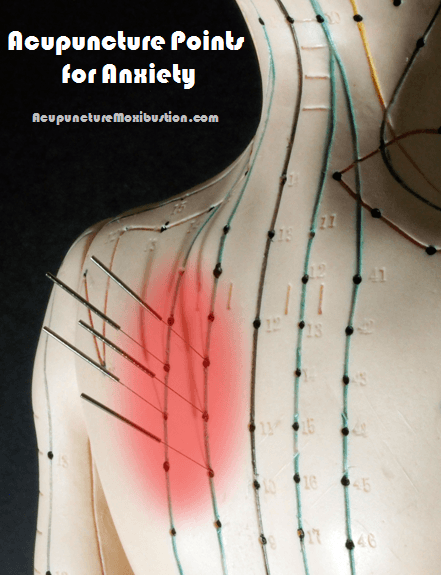 Upper back Anxiety and Stress Acupressure Points shown on acupuncture model