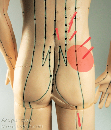 Acupuncture points used for sciatic pain condition - low back and hip regions