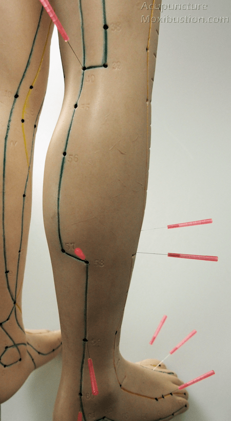 Acupuncture Points for Sciatic pain - leg and foot regions