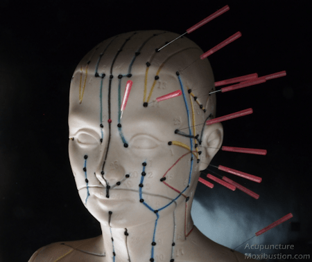 Head Acupuncture points used for Migraine headaches