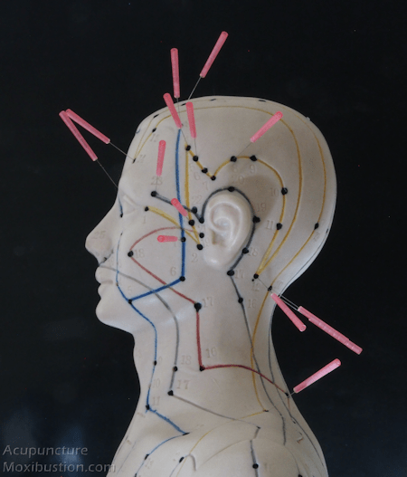 Acupuncture points used for Migraine headaches - Needles Inserted on side of head