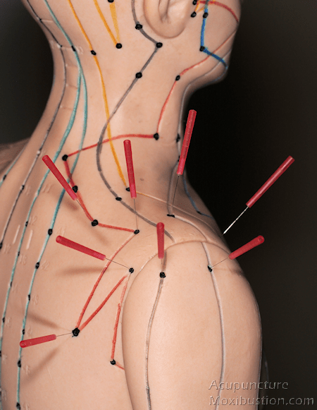 Acupressure points for shoulder injuries - Needles inserted on acupuncture model