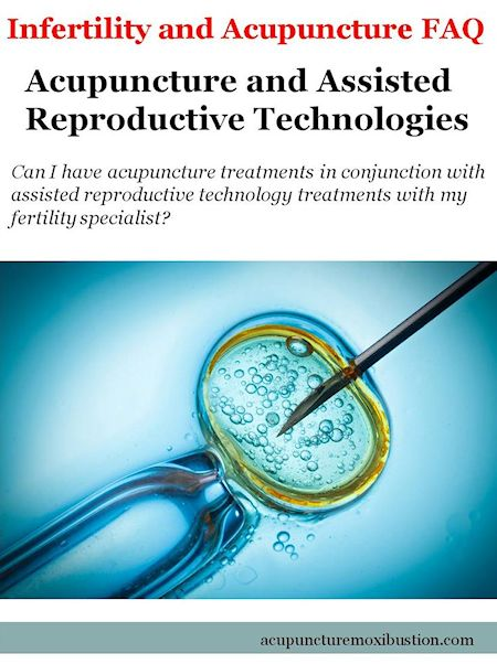 Acupuncture and Assisted Reproductive Technologies 450w