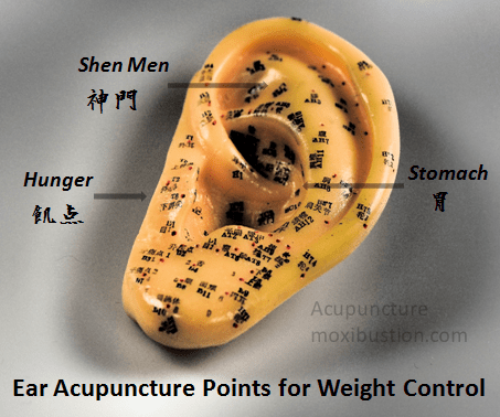 Weight loss and appetite suppression ear acupuncture points
