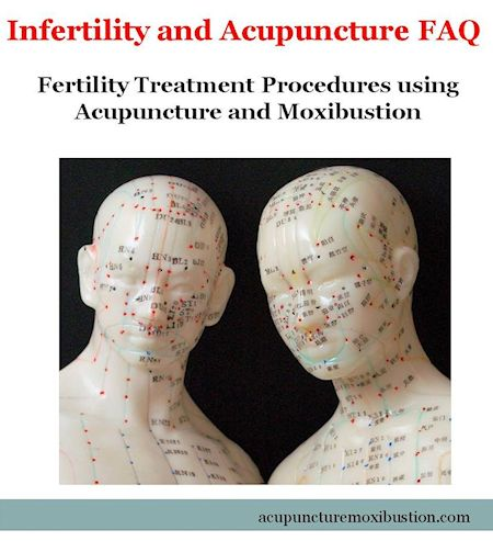 Fertility Treatment Procedures using Acupuncture and Moxibustion 450w