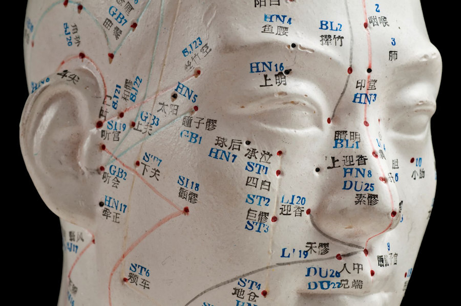 head acupuncture points