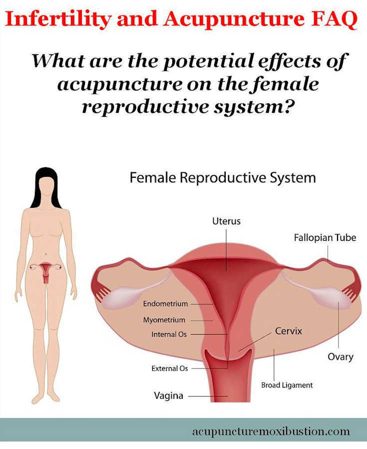 Reproductive-Acupuncture